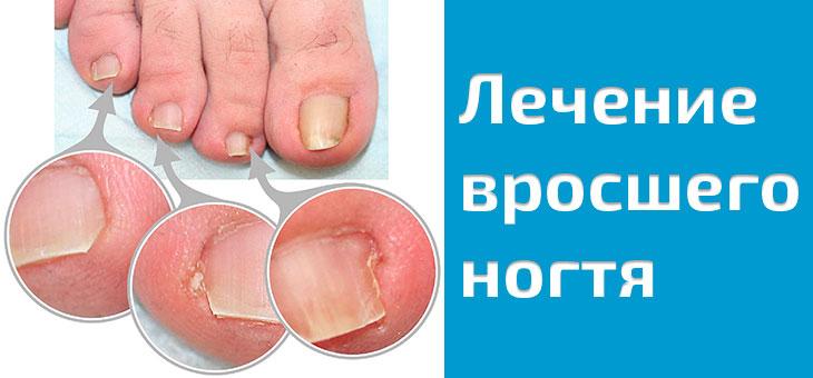 Лечение врастающего ногтя народными средствами в домашних условиях